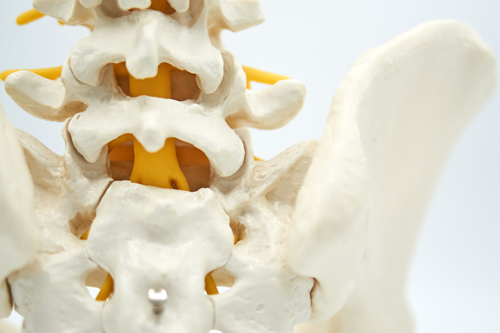 Spinal Stenosis Symptoms, Causes & Treatment - PMIR Medical Center